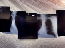 ¡Tus radiografías también se reciclan!